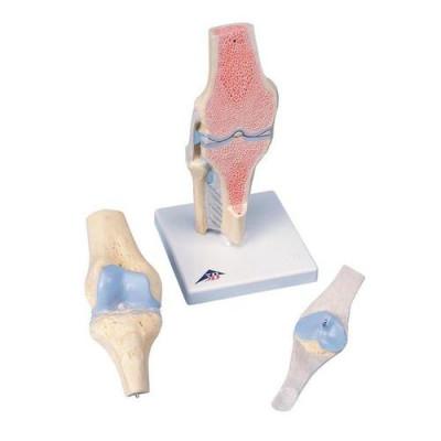 Modèle de coupe de l'articulation du genou, en 3 parties - Anatomie et pathologie
