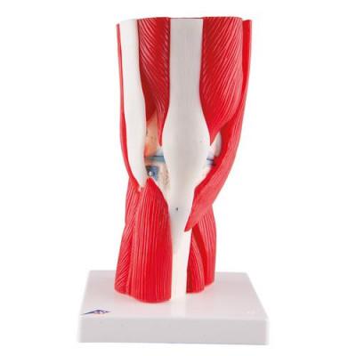 Articulation du genou, en 12 pièces - Anatomie et pathologie